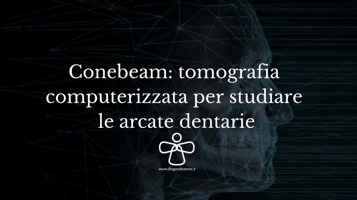 Conebeam_-tomografia-computerizzata-per-studiare-la-arcate-dentarie-1200x675.png