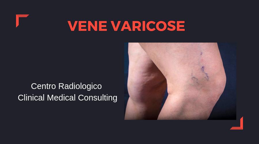vene-varicose.png
