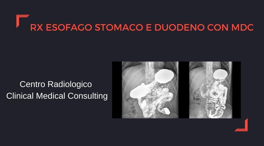 rx-esofago.jpg