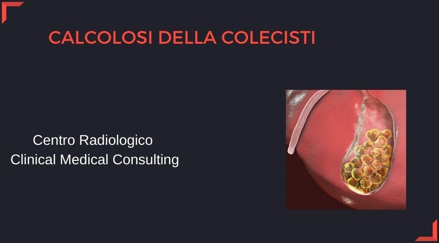 calcolosi-della-colecisti.jpg